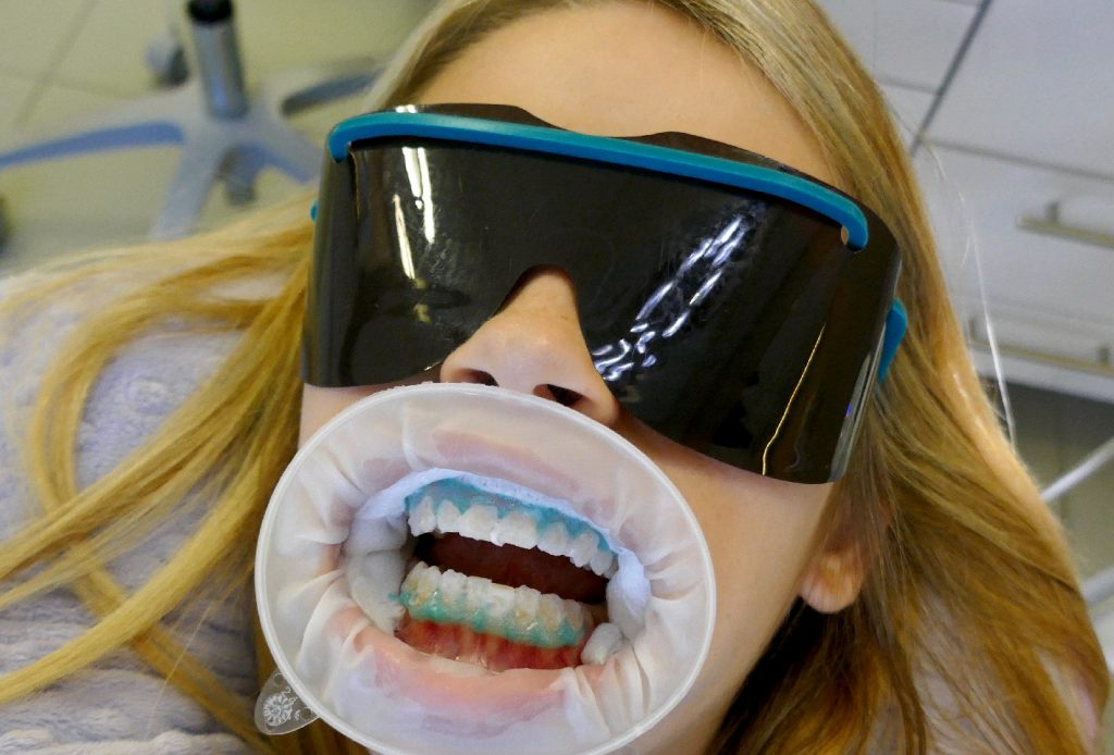 Teeth whitening patient at Archer Dental with protective eye wear, mouth guard, gingival barrier