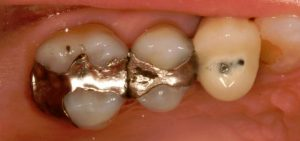 old mercury and silver filings in teeth hide cavities