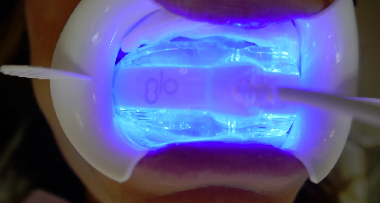 GLO Science at work in Dr Archer's mouth - Archer Dental teeth Whitening test