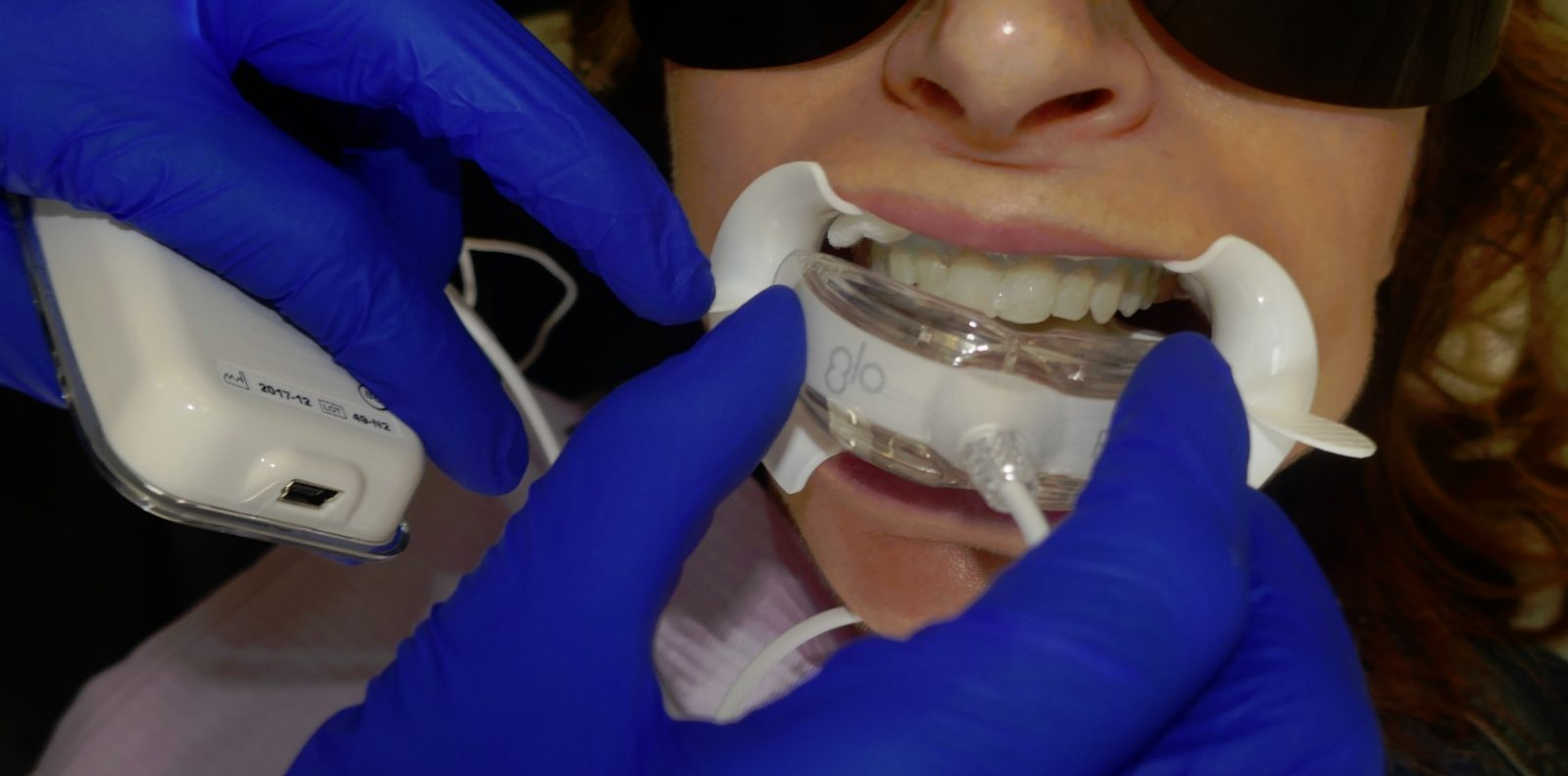 GLO teeth whotening device being inserted into patient's mouth