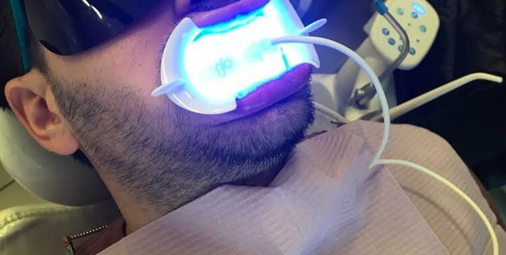 GLO Science teeth whitennig in Toronto