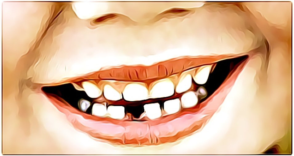 baby teeth family dentistry, baby smile missing tooth