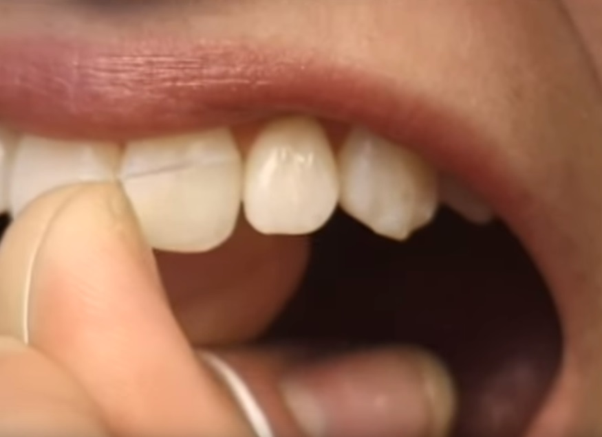 close-up dental patient uses tooth floss to clean between teeth