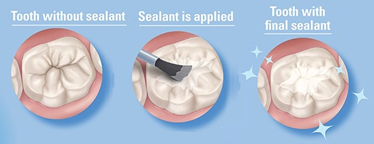How dental sealants work to prevent tooth decay