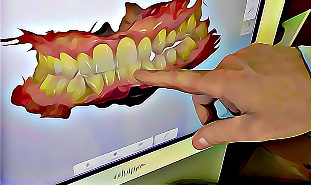 digital scan showing teeth straightening orthodontist