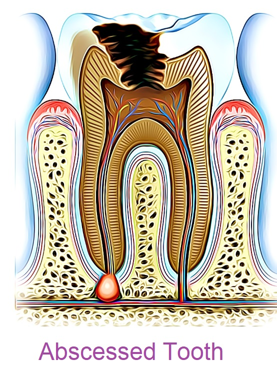 an abscessed tooth can cause a painful toothache