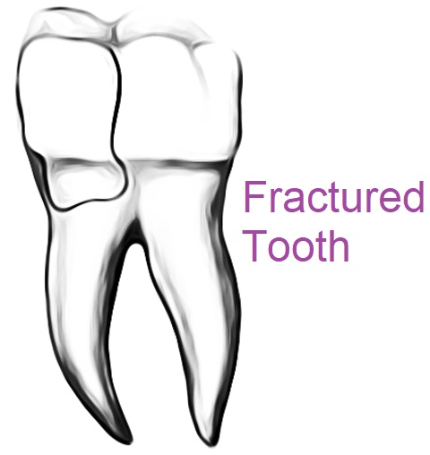 fractured tooth can cause toothaches, dentist remove fractured cusp for relief