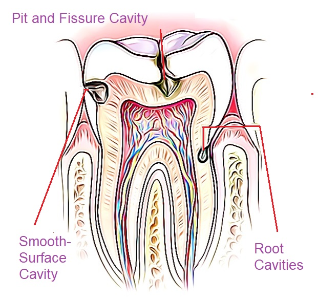 three different types of cavities, all cause toothaches