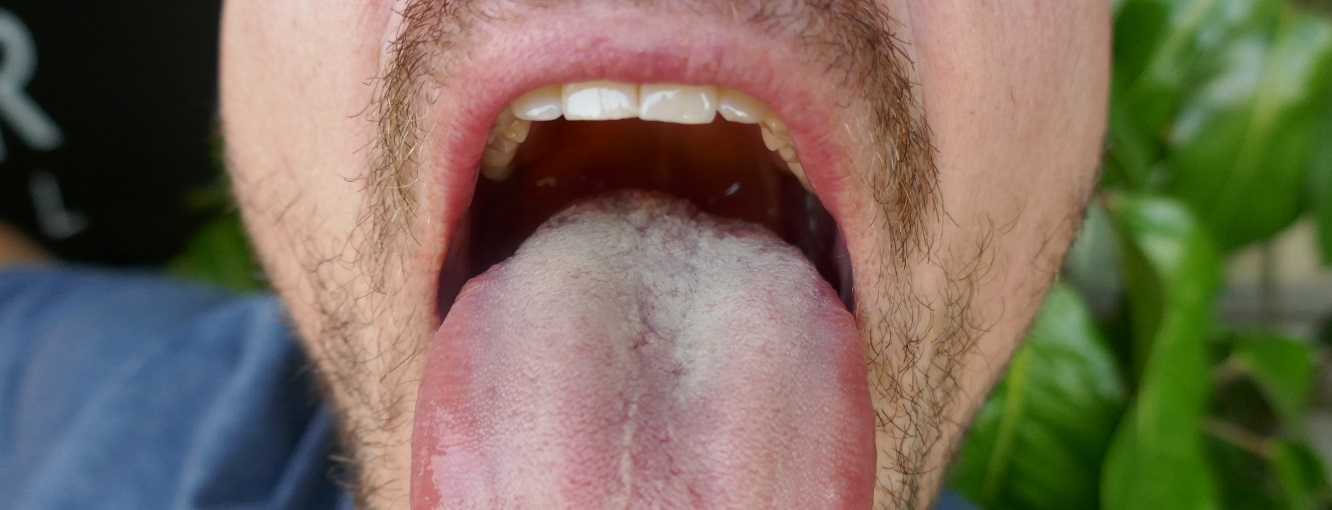 infected mouth, halitosis in adult male