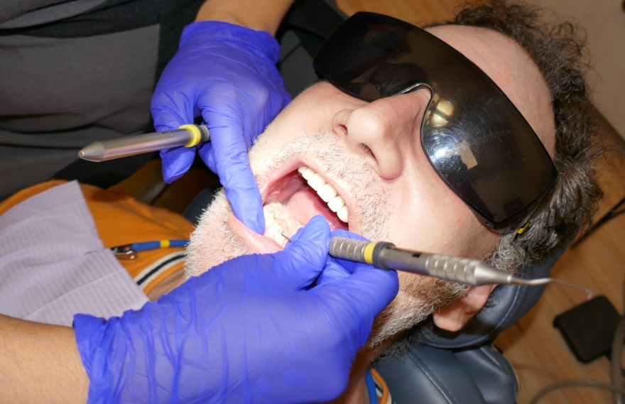 teeth cleaning in Toronto at Archer Dental Little Italy