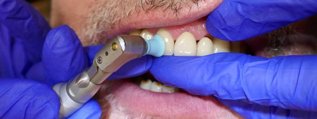 polishing teeth during teeth cleaning session at Rosedale