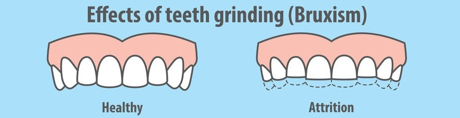 Effects of teeth grinding Bruxism