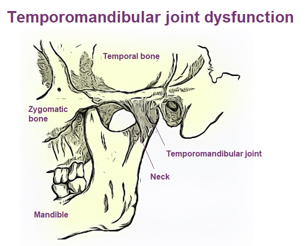 Temporomandibular joint (TMJ) graphic showing muscles and bones in skull.
